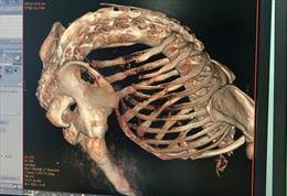 Phẫu thuật, chỉnh thẳng 'lưng tôm' cho người đàn ông bị gù 22 năm