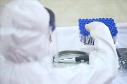 Bệnh nhân 268 ở Hà Giang đã âm tính lần 1 với virus SARS-CoV-2
