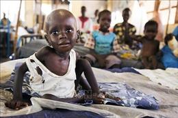UNICEF: Trên 10 triệu trẻ em châu Phi đứng trước nguy cơ bị suy dinh dưỡng cấp tính năm 2021
