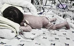 Phẫu thuật thành công bướu quái khổng lồ ở trẻ sơ sinh