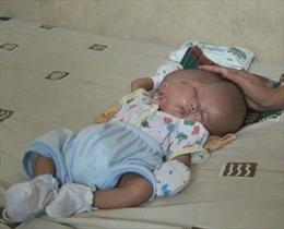 Bé sơ sinh chào đời với hai khuôn mặt, hai bộ não