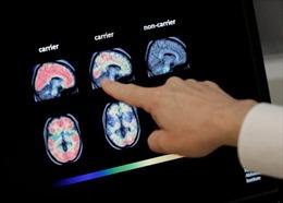 Loại thuốc đầu tiên có thể làm chậm bệnh Alzheimer