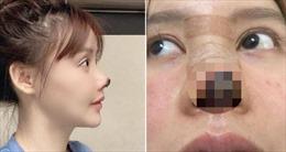 Nữ diễn viên bị rụng mũi vì lạm dụng thẩm mỹ