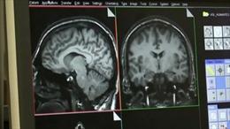 Chứng bệnh thần kinh chết người bí ẩn ám ảnh Canada