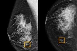 Hệ thống Google giúp phát hiện ung thư vú
