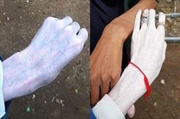 Kem dưỡng da Thái Lan gây tranh cãi vì độ trắng rợn người