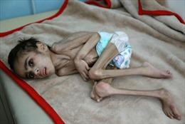 Xót xa cậu bé Yemen 7 tuổi chỉ nặng 7kg vì nạn đói