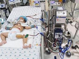 Suy hô hấp nguy kịch, một bé gái được cứu sống nhờ kỹ thuật ECMO