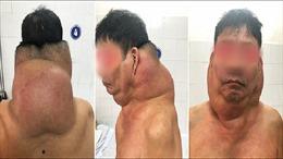 Phẫu thuật thành công khối u khổng lồ gần 5kg cho một thương binh Hải Phòng
