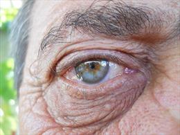 Phát triển thuốc nhỏ mắt điều trị bệnh thoái hóa điểm vàng