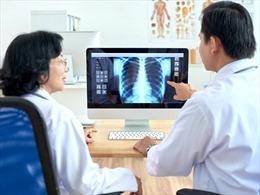 Triển khai giải pháp AI- VinDr trong chẩn đoán hình ảnh y tế