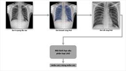 VinBrain và FIT công bố sách trắng về ứng dụng trí tuệ nhân tạo cho chẩn đoán và tầm soát bệnh lao tại Việt Nam