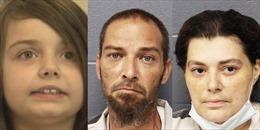 Thương tâm bé gái bị bố mẹ bỏ mặc, tử vong do bị chấy cắn nghiêm trọng