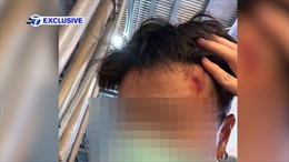 Người phụ nữ gốc Á nhập viện sau khi bị tấn công vì đeo khẩu trang tại New York