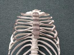 Ca ghép xương ngực nhân tạo bằng công nghệ in 3D đầu tiên tại Hàn Quốc