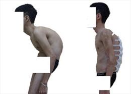 Nắn chỉnh biến dạng cột sống thành công cho bệnh nhân 'siêu gù'