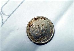 Khẩn cấp nội soi gắp đồng xu ra khỏi ổ bụng bé gái 6 tuổi