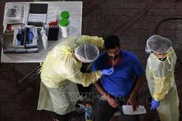 Toàn thế giới đã ghi nhận trên 154,4 triệu ca nhiễm virus SARS-CoV-2