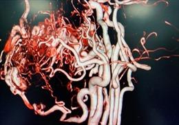 Can thiệp thành công ca dị dạng mạch máu má môi hiếm gặp