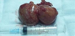 Can thiệp thành công ca bệnh nang màng ngoài tim hiếm gặp