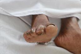 Chuyên gia y tế khuyến cáo cách phòng tránh bệnh Whitmore