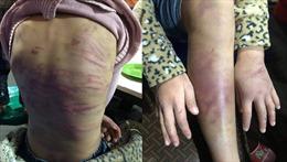 Chỉ đạo xác minh, xử lý vụ bạo hành trẻ em tại quận Hà Đông