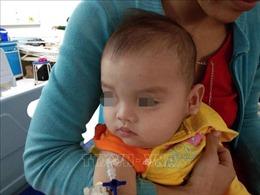 Phẫu thuật khối bướu khổng lồ trên mặt cho bệnh nhi 12 tháng tuổi