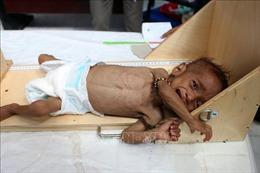 Liên hợp quốc kêu gọi viện trợ số tiền kỷ lục cho Yemen