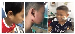 Bệnh viện Sản Nhi Nghệ An điều trị ba ca bệnh nhiễm Whitmore