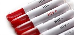 Cuba thử nghiệm thuốc phòng virus HIV/AIDS