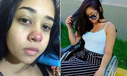 Người đẹp Brazil bị liệt nửa người sau khi xỏ khuyên mũi