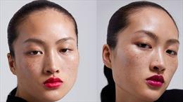 Câu chuyện người mẫu mặt tàn nhang và tiêu chuẩn về cái đẹp ở Trung Quốc