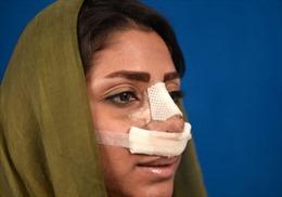 Iran cấm bác sĩ nam phẫu thuật thẩm mỹ cho nữ bệnh nhân