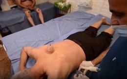 Dùng giác hơi điều trị di chứng của COVID-19 tại Iraq