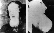 Bi kịch những 'cô gái radium' và kỷ nguyên đen tối của phóng xạ - Kỳ 2