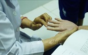 Bộ Y tế kêu gọi người dân phòng chống dịch tay chân miệng, sởi và sốt xuất huyết