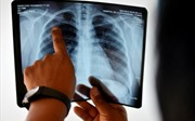 Trí tuệ nhân tạo có thể chẩn đoán bệnh như bác sĩ