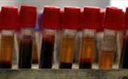 Phát triển công nghệ chẩn đoán suy giảm trí nhớ bằng xét nghiệm máu