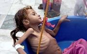 Hình ảnh đau thương trẻ em Yemen da bọc xương nhai lá cây để sống