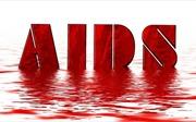 Italy thử nghiệm thành công vaccine điều trị HIV/AIDS