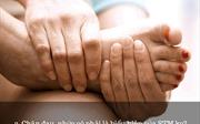 5 bước cơ bản để phòng ngừa bệnh suy giãn tĩnh mạch hiệu quả