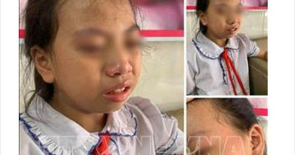 Hà Giang: Tạm đình chỉ cô giáo tát học sinh lớp 4